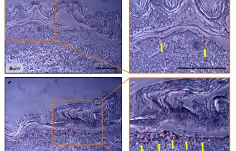 Copper Ions Ameliorated Thermal Burn-Induced Damage in ex vivo Human Skin Organ Culture